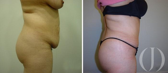 abdominoplastia-0-b