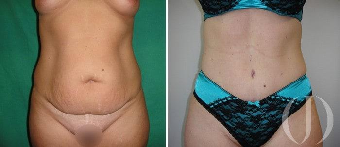 abdominoplastia-12