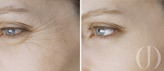 Botox-3
